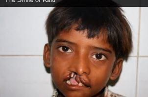 050-Indien-2013-Cleft-Spaltkinder/Kalu