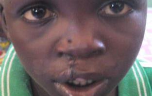 057 Ruanda-2014-Deutsche-Cleft-Kinderhilfe e.V.